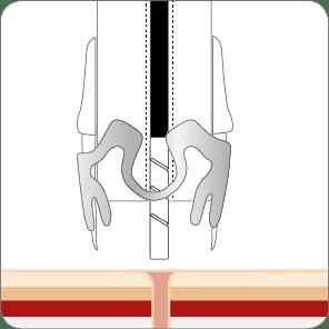 Fistelverschluss mit dem OTSC Schritt 1