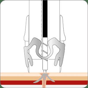 Fistelverschluss mit dem OTSC Schritt 2