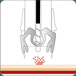 Blutstillung mit dem OTSC System und Ankertechnik Schritt 1