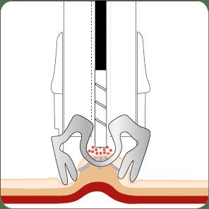 Blutstillung mit dem OTSC System und Ankertechnik Schritt 3